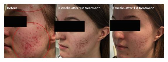 Плазменная сублимация Лечение акне и сужение пор - до и после 1