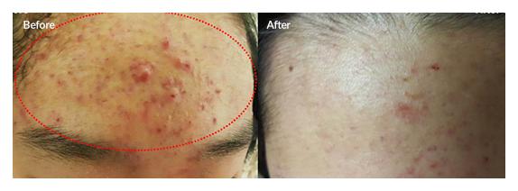 Плазменная сублимация Лечение акне и сужение пор - до и после 2